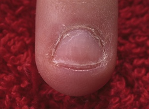 The nail biter's nail plate can be as little as one- quarter the size of  a normal plate. Another challenge is working around the puffy skin at  the tip of the finger. The puffiness can cause a tip to eventually pop  off, or may give a sculpted nail a remarkable resemblance to an M&M.