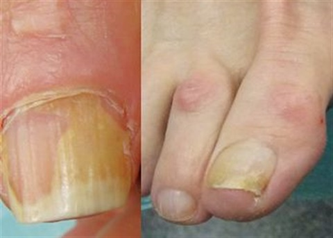 <p>Onycholysis — or separation of the nail plate from the underlying nail bed — can result in a yellow nail.</p>