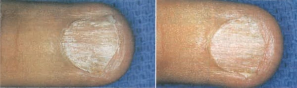 [left] This patient's brittle nail is caused by alopecia areata (a dermatologic condition) before biotin treatment. [right] Same nail 10 weeks after biotin treatment.