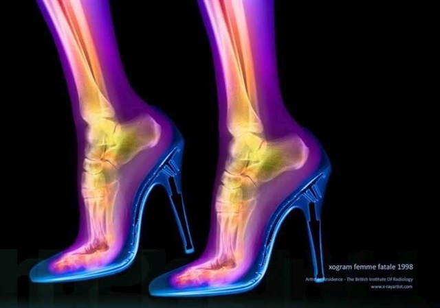 An X-ray of feet in heels.