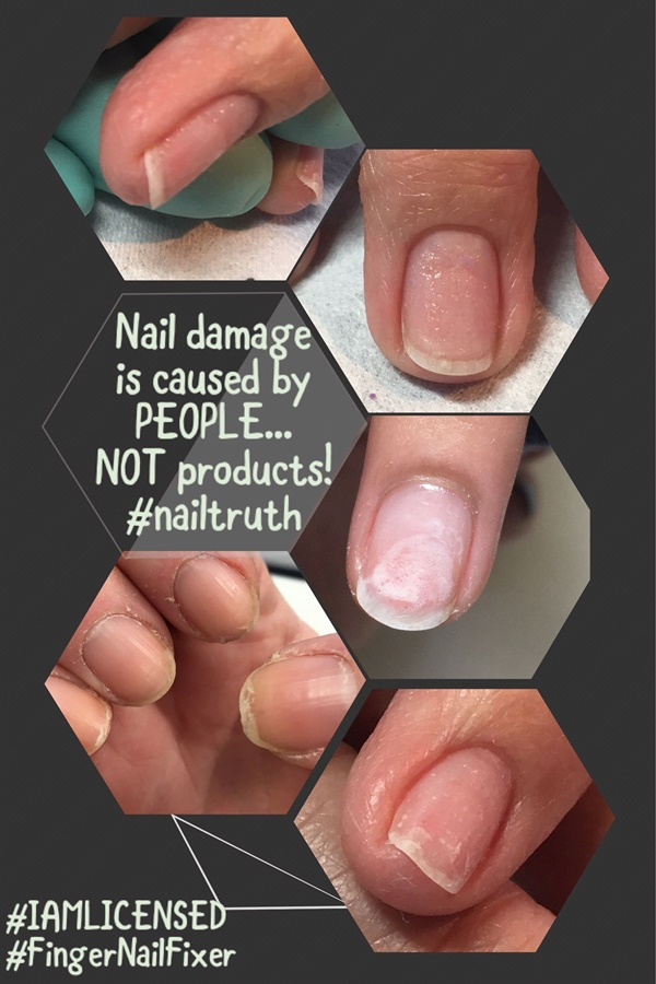 Week 7 Social Media Post: The Truth About Nail Damage - - NAILS Magazine