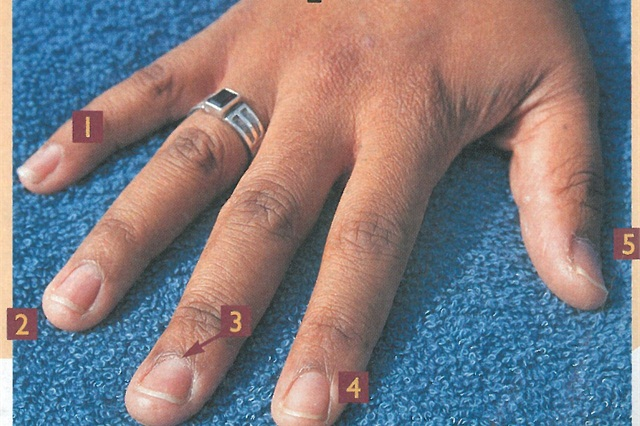 What causes fingernails to separate?