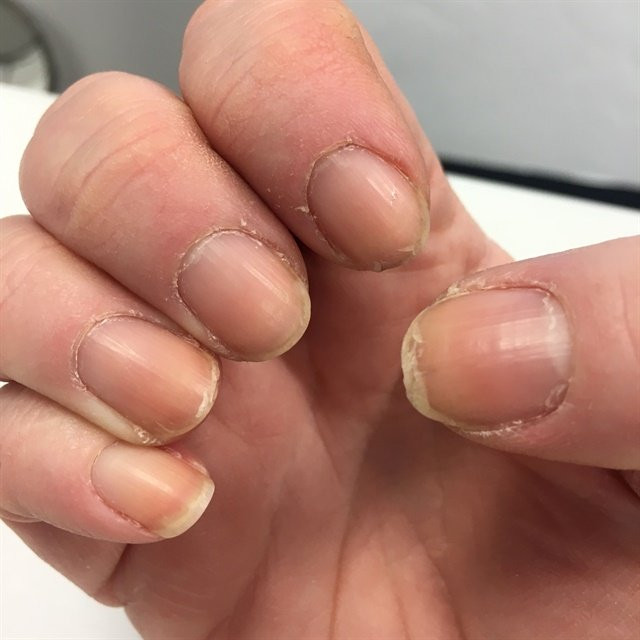 <p>My nails have begun to be a sign of the indifference I've had for my health.</p>
