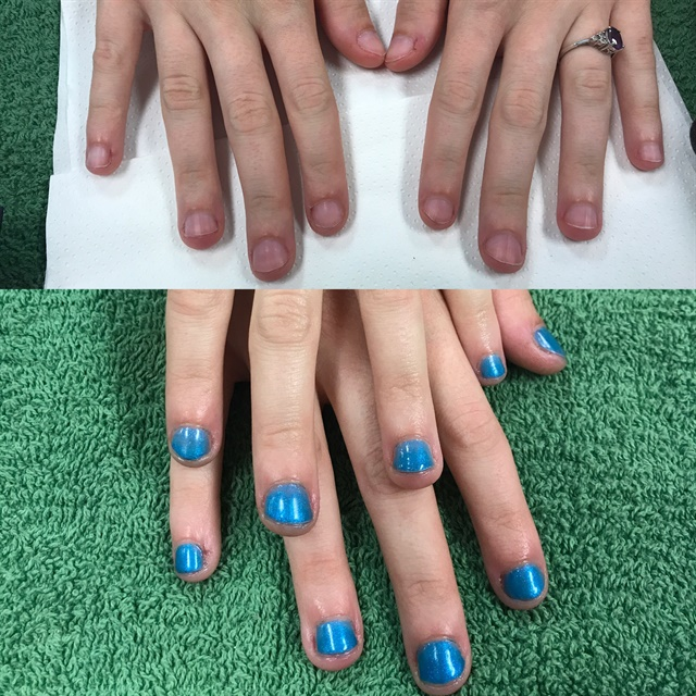 <p>I performed a gel manicure on a nail biter.</p>