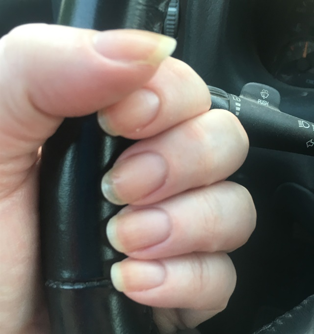 <p>My nails are showing improvement since I've been eating healthier.</p>
