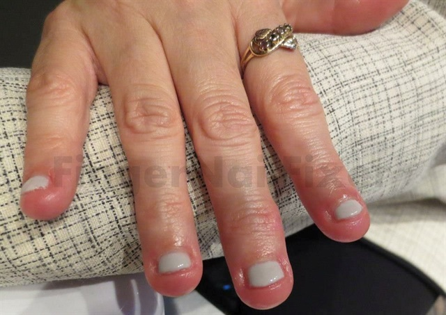 <p>This was my client's first manicure on her journey to stop biting.</p>