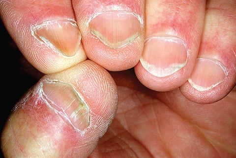 <p><strong>koilonychia:</strong> an abnormality of the nail that causes the nail to be flat or concave and the outer edges of the nail to flare out; also known as spoon nails.</p>