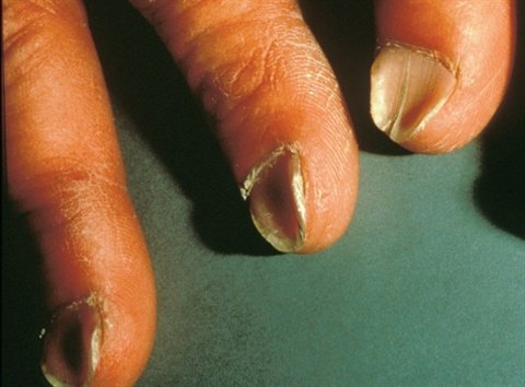 <p>In severe cases of koilonychia, the nails have a spoon-like indent in the middle. Often the nail is also split vertically down the center.</p>