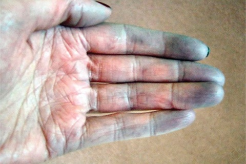 Raynaud's Disease (ra-'noz) n: a constriction of the blood vessels brought on by cold or stress that causes a discoloration of the fingers and toes