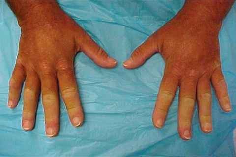 <p>Though this photo shows signs of Raynaud's on all fingers, it is possible for Raynaud's to affect single fingers or toes.</p>
