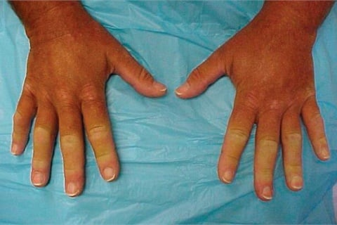 Though this photo shows signs of Raynaud's on all fingers, it is possible for Raynaud's to affect single fingers or toes.