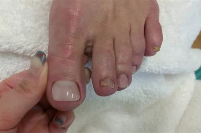 Clients Should Not Receive Laser Treatment For Nail Fungus While Keryflex Nails Are In Place Although They Can Be Lied Immediately After Completing