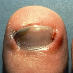Onychocryptos Another Name For Ingrown Nails Isa Condition Of The Fingers And Toes In Which Nail Grows Into Sides Tissue Around
