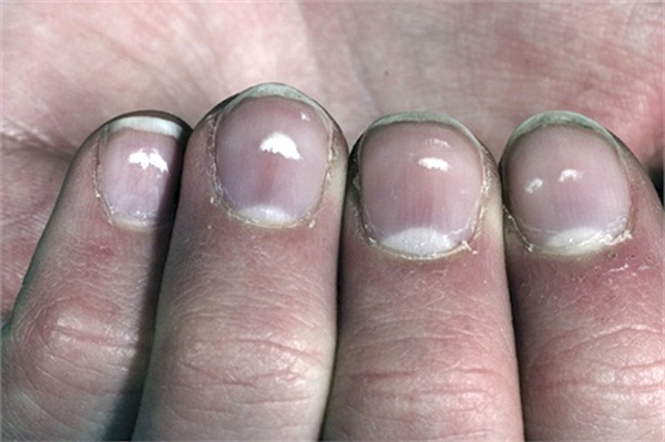 One Of My Clients Has Dry White Spots On Her Toenails She Went To The Podiatrist And He Said Was Allergic Nail Polish