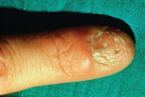 <p><strong>lichen planus: </strong>an inflammatory condition of the skin; can be present anywhere on the skin, on the scalp, in the mouth, or on the nails</p>