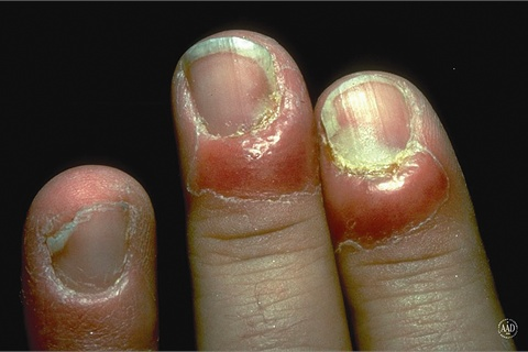 Both Are Caused When The Seal Between Nail Fold And Plate Is Broken Infection Gets In