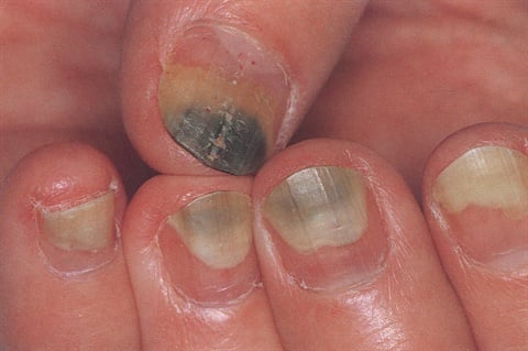 In The Salon It S More Commonly Referred To As Greenies Wver Name An Unsightly Bacterial Infection That Makes Clients And Nail