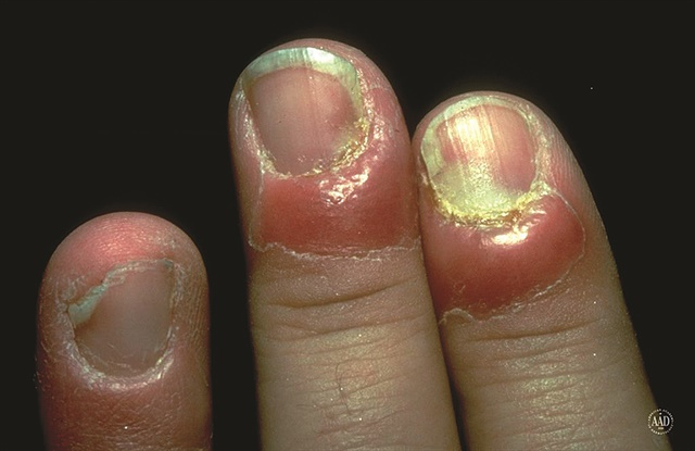 Paronychia is an infection of the nail fold that occurs from compromise to the cuticle.