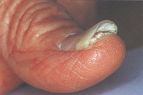 Sometimes other conditions can lead to onycholysis, such as these nails which also suffer from psoriasis.