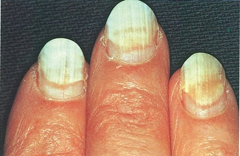 What Is Onycholysis