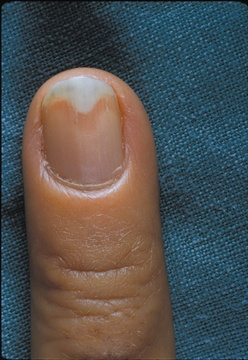 In onycholysis, the nail plate separates from the nail bed. It can take the nail months to re-attach itself.