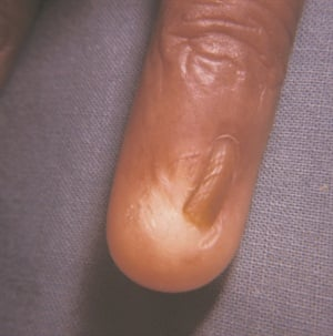 Once the matrix is dmaaged, the scar tissue grabs onto the nail plate. Instead of folding under at the nail base, it stretches the skin over the nail as the nail grows out.