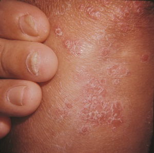 Psoriasis can appear on any part of the body, including the nails and elbows.