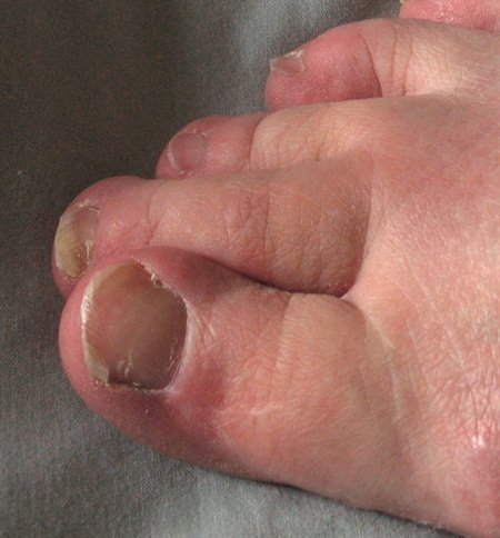 <p>Some patients mistakenly believe their thickened toenails are the result of a fungal infection.</p>