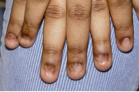 Птеригиум на ногтях