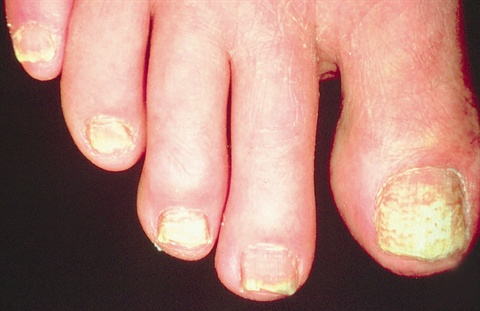 <p>Having brittle toenails as well as fingernails can indicate a systemic problem rather than an environmental cause.</p>