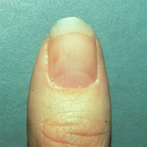 A Nail Tumor Is Lesion That Located In The Bed Or Matrix Most Turmors Are Benign But May Need To Be Removed By Doctor
