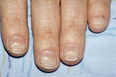 Beaus Lines Appear On The Nails As Horizontal Ridges Or Grooves French Physician Joseph Honore Simon Beau Is Credited With Name Because He Was One