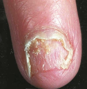 <p>This shows onycholysis after the nail has been cut back. </p>