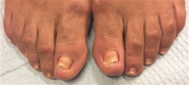Nail dystrophy (abnormal nail growth) can appear similar to fungal nails. Here you can see how the anatomy of this patient's feet would predispose the feet to a lot of rubbing within the shoe, resulting in changes to the nail.