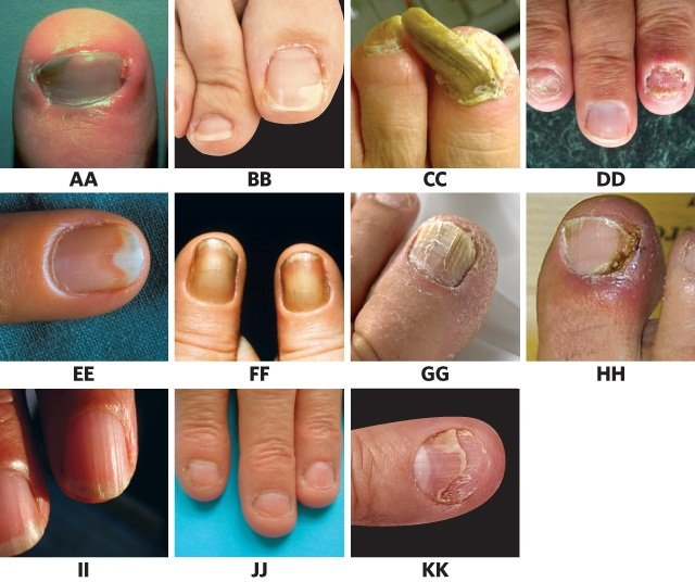 Know Your Onychos A Nail Disease Quiz