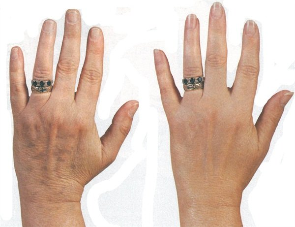 The hand at the left has been exposed to the sun one too many times and has many visible age spots. After being treated with Cuccio Naturale's Lemo Skin lightening Serum, the same hand at right is noticeably smoother and age spots have virtually disappeared.