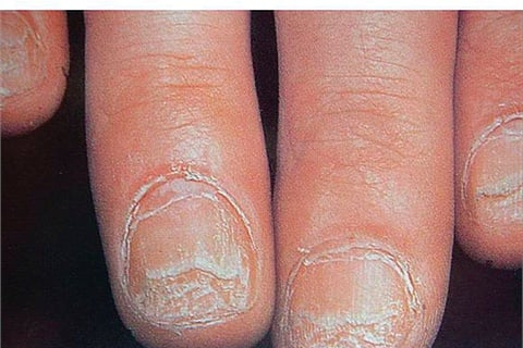 alopecia areata (al-oh-PEE-shah air-ee-AH-tah) n: a highly unpredictable, autoimmune skin disease resulting in the loss of hair on the scalp and elsewhere on the body. In rare instances, it affects the nails