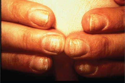 Enhancements are not recommended when alopecia areata affects the nails.