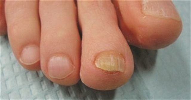This thickened, yellowed nail is the result of chronic friction, not fungus.  Interestingly, this patient — a runner — was treated with a laser for fungus by a podiatrist, but never tested positive for fungus.