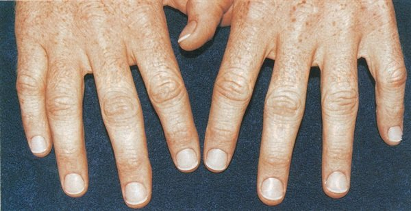 <p>After: With 10 great-looking nails, your male nail biting client can break his bad habit.</p>