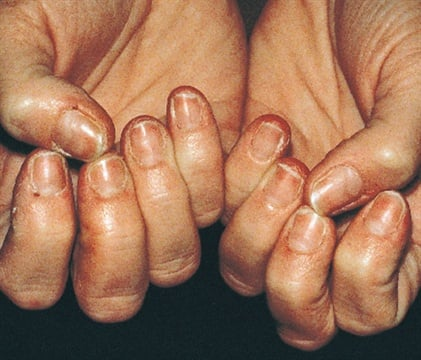 <p><strong>[on-e-ko-'reck-ses] or [on-e-ko-'skiz-e-ya] </strong>nails on the hands and feet that break and peel easily. Alternate medical names include onychorrhexis and onychoschizia.</p>