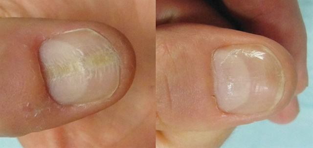 <p>Habit tic: before and after treatment</p>
