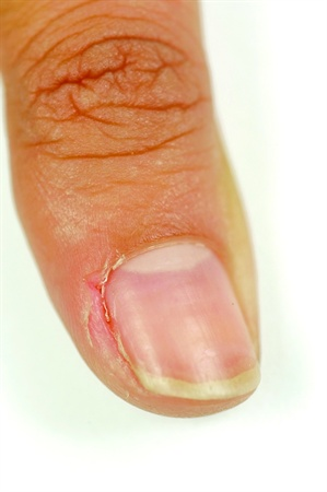 The Cuticle Is A Layer Of Colorless Skin That Constantly Shed From Underside Proximal Nail Fold And Attaches To Surface As It Grows