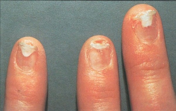 Skin Allergies Usually Manifest Themselves As Small Blisters Red And Rough Nail Separation If The Allergic Reaction