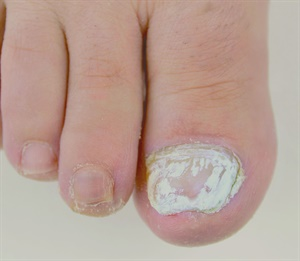 Something to Talk About: White Superficial Onychomycosis - Health ...