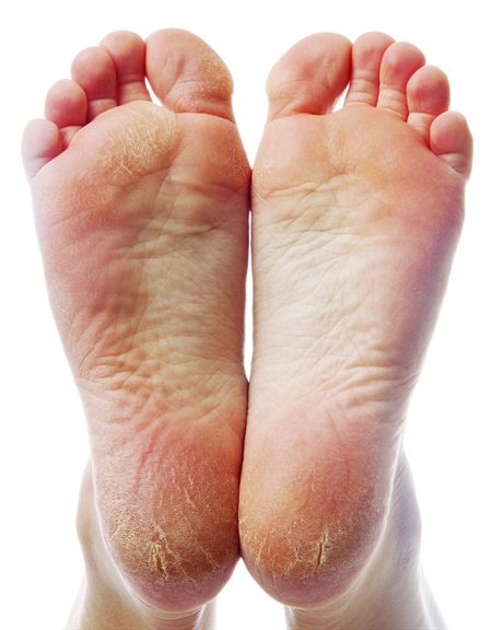 cracked skin on feet