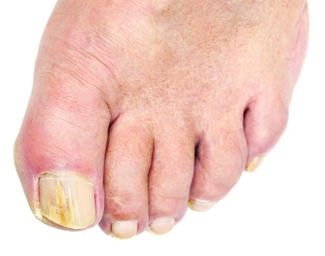 Something to Talk About: Embarrassing Feet - Technique - NAILS Magazine