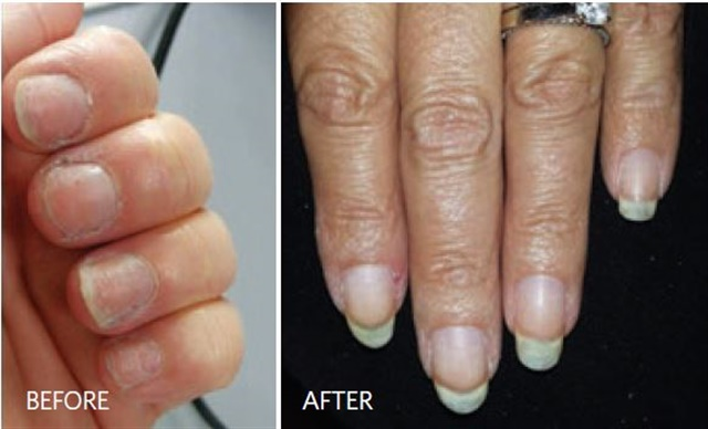 My client was able to grow out her natural nails with some professional help.