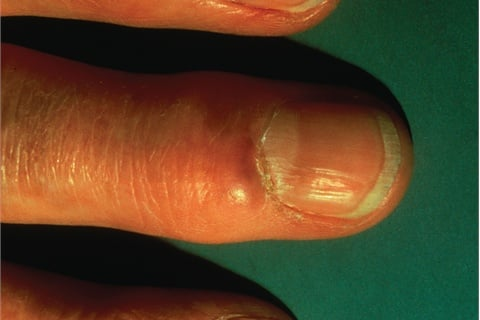 Bumps On Fingers