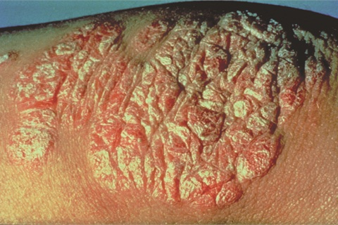 <p>A common form of psoriasis is charactered by raised red skin and silvery scales. </p>
